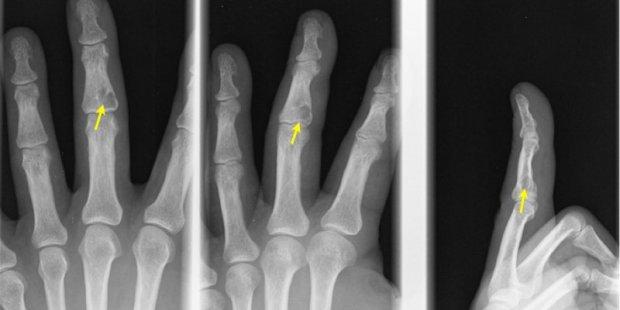 Tumeur osseuse (flèche) de type Enchondrome