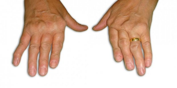"Rheumatoide arthritis with deviation ""en coup de vent cubital"" of the fingers"