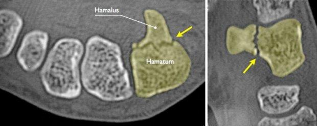 Fracture du crochet (hamulus) de l'os crochu (hamatum) mise en évidence au Scanner