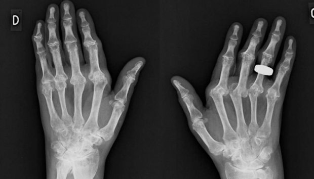 Radiographies caractéristiques d'une Polyarthrite Rhumatoïde (face)