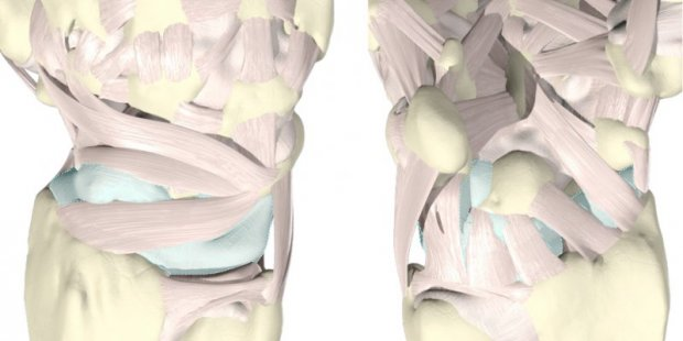 Ligaments (rose) et capsule articulaire (bleu) du poignet face dorsale (à gauche) et palmaire (à droite)
