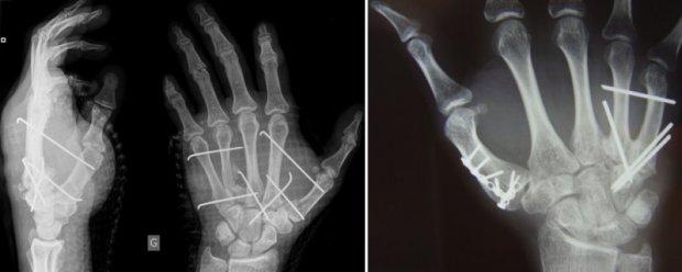 Exemples de matériel implantable dans une main : broches (à gauche), micro-plaque et micro-vis en titane (à droite)
