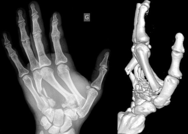 Fractures-luxations multiples de la main