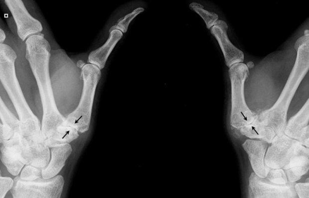 Rhizarthrose sévère bilatérale : destruction de l'articulation, contact osseux et déformation