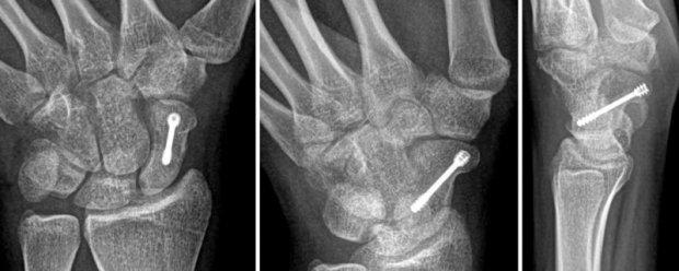 Stabilisation d'une fracture du scaphoïde par vissage percutané