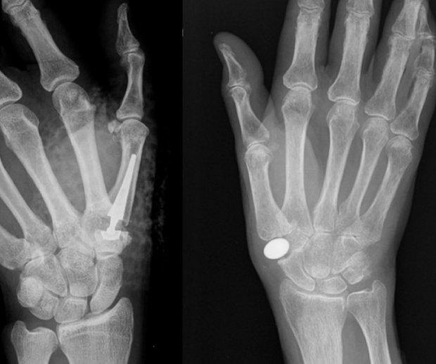 """Implant de type """"ball and socket"""" (Prothèse de pouce) (à gauche) et implant d'interposition en pyrocarbone (à droite)"""