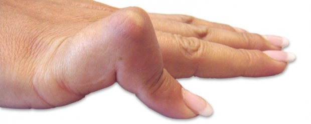 Boutonnière deformity of the little finger