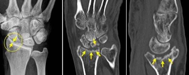 Différents types d'arthrose (radio-carpienne) du poignet (Rx et Scanner)