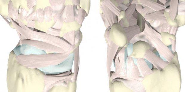 Wrist sprain | www.hand-surgery.eu