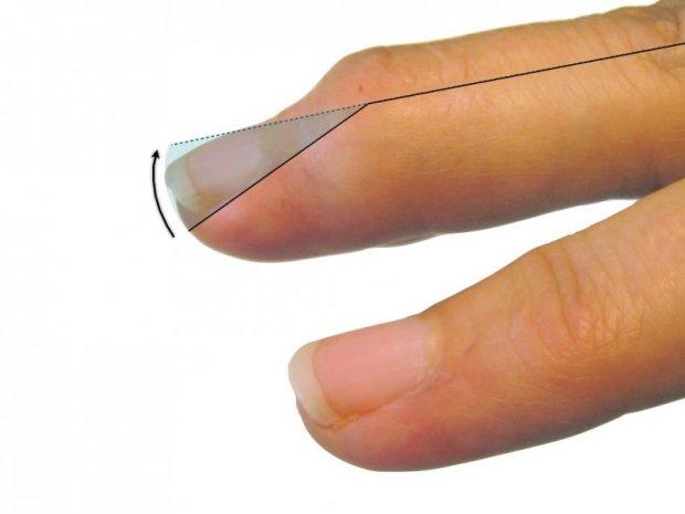 Impossibilité de redresser le bout du doigt