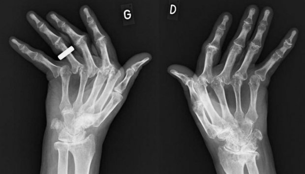 Radiographies caractéristiques d'une Polyarthrite Rhumatoïde (profil ¾)