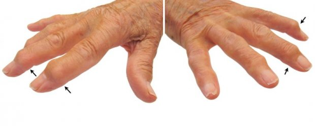Mallet finger on osteoarthritis