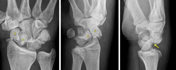 Trans-scaphoid (*) perilunate (arrow) fracture-dislocation
