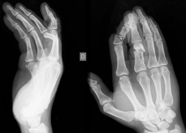Fractures comminutives, déplacées et ouvertes de la main
