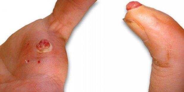 Tumeurs de type Botryomycome