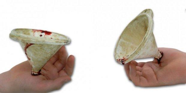 Excroissance anormale de la main (ici, un entonnoir souillé)