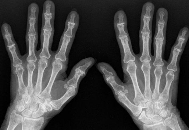 Arthrose polydigitale bilatérale : aspect radiologique