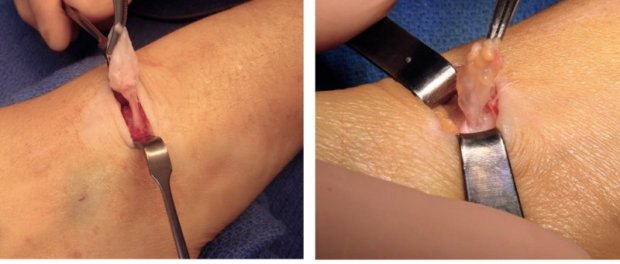 Macroscopic aspect of « water balloon on a stalk » of a dorsal synovial cyst of the wrist (left) and palmar synovial cyst of the wrist (right)