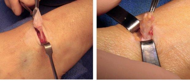 Aspect macroscopique de « ballon sur tige » d'un kyste synovial dorsal du poignet (à gauche) et palmaire du poignet (à droite)