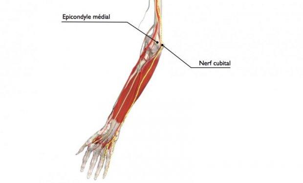 Le nerf cubital (en jaune) passe sous l'épicondyle médial à la face interne du coude