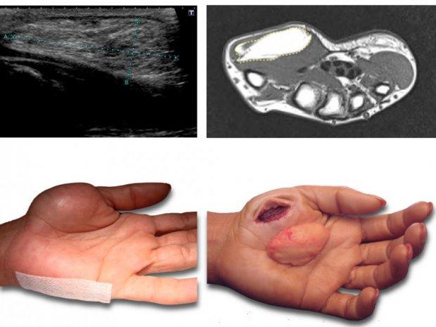 Hand tumour | www hand-surgery eu