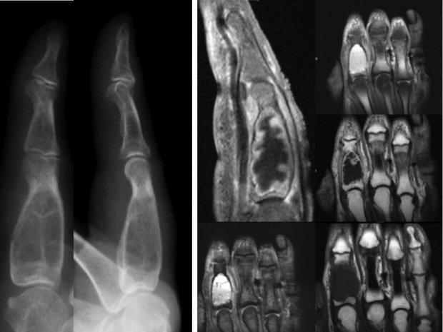 Tumeur osseuse de type Chondrosarcome