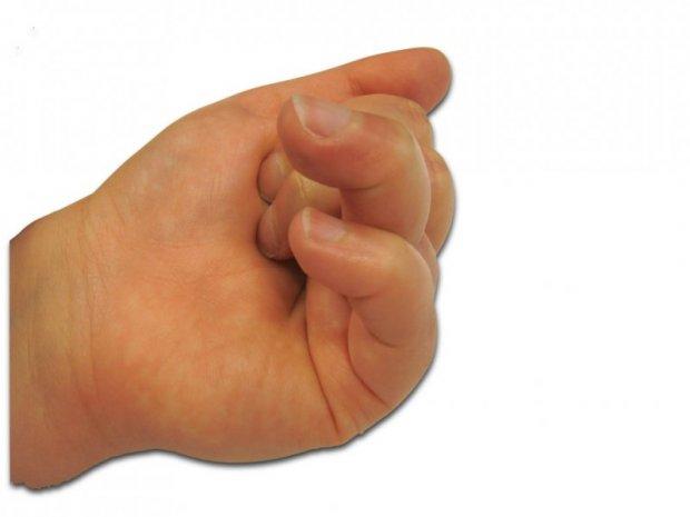 Enroulement des 4ème et 5ème doigts impossible et raideur fixée des articulations IPP (articulation centrale des doigts)
