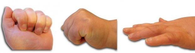 Clinical result of soft tissue repair. Recovery of the winding and extension function of the fourth and fifth fingers.
