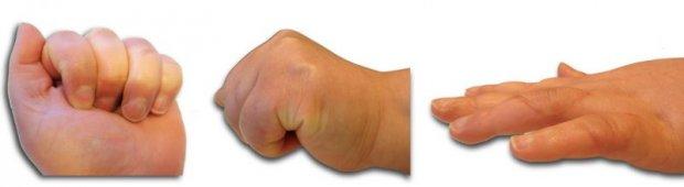 Résultat clinique d'une réparation des tissus mous. Récupération de la fonction d'enroulement et d'extension des 4ème et 5ème doigts.