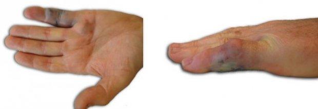 24h post-2ème injection du Xiapex, extension du doigt