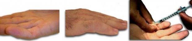 CAS 2 : Atteinte digitale de l'auriculaire de la main D (Récidive post-chirurgicale) - J1 injection du Xiapex