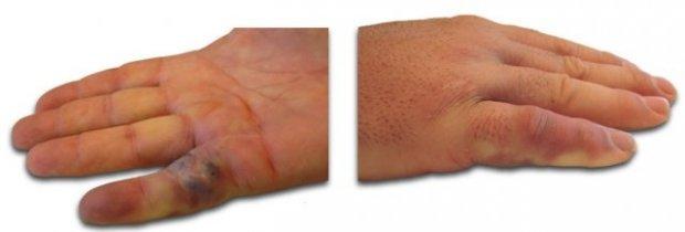 24h post-injection du Xiapex, extension du doigt