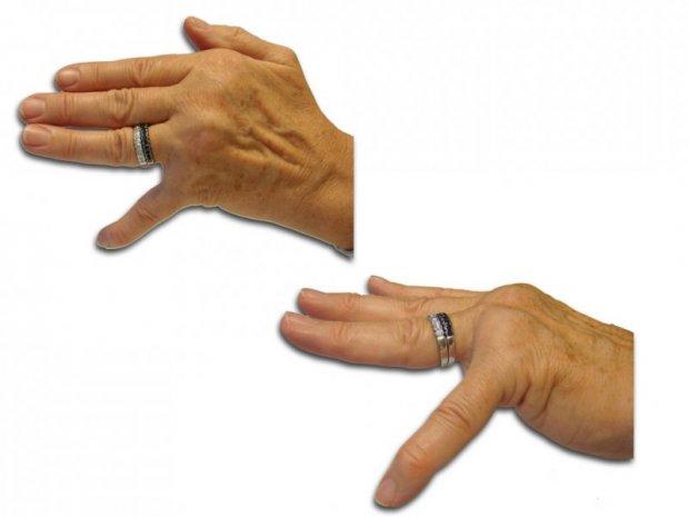 Rupture de la sangle de l'extenseur, distension capsulaire et rupture du ligament collatéral radial de l'articulation métacarpo-phalangienne (MCP) du 5ème doigt. Impossibilité totale de redresser le doigt et de le ramener au contact des autres doigts
