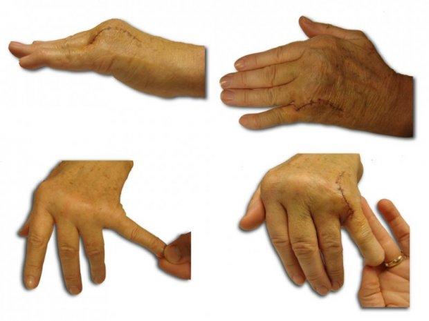 Récupération de la fonction d'extension et d'adduction du 5ème doigt après réparation chirurgicale de la sangle de l'extenseur et du complexe capsulo-ligamentaire