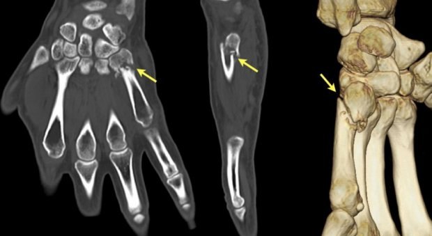Fifth metacarpal nonunion