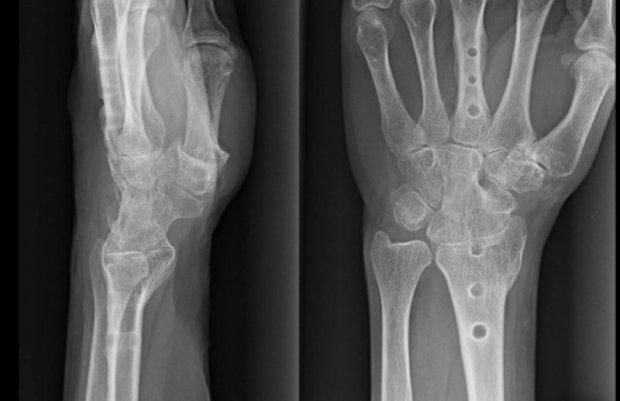 Aspect radiologique d'une arthrodèse totale de poignet après ablation du matériel