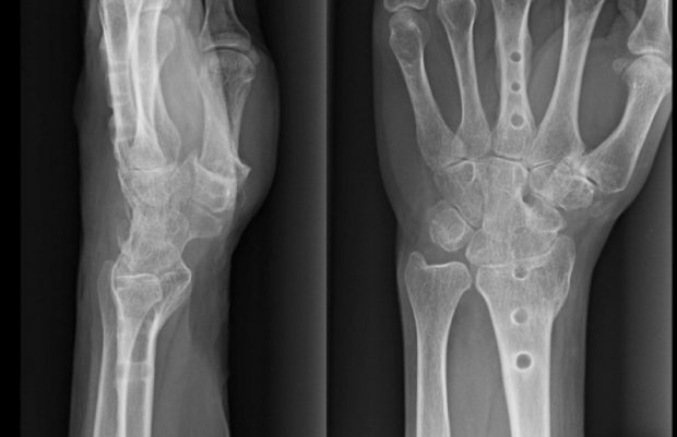 Radiological aspect of a total wrist fusion after hardware removal