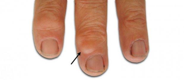 Kyste mucoïde du doigt