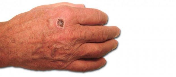 Carcinome Spinocellulaire du dos de la main