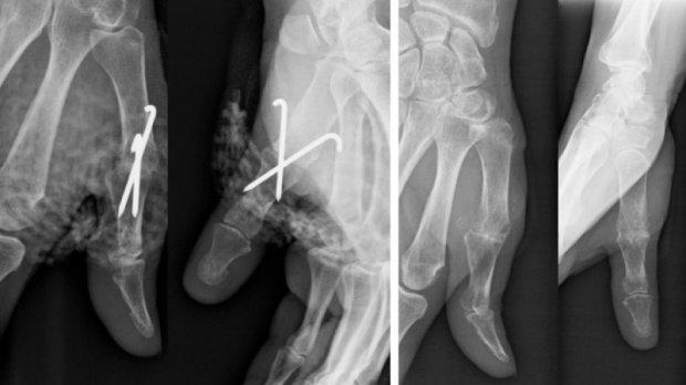 Arthrodèse de l'articulation MCP du pouce