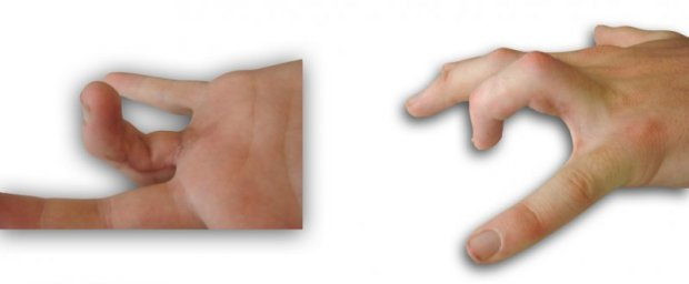 Functional extension deficit of the fourth finger secondary to scar adhesions of the flexor tendons