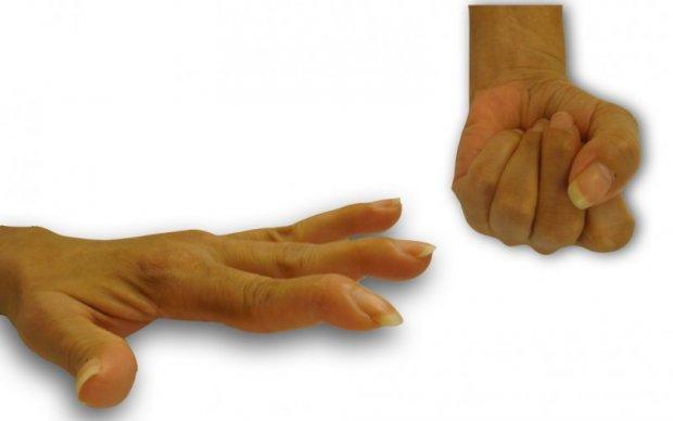 Déformations en col de cygne chez une patiente hyperlaxe