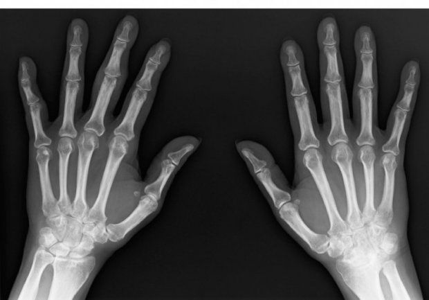 Radiographic features of a Psoriatic arthritis