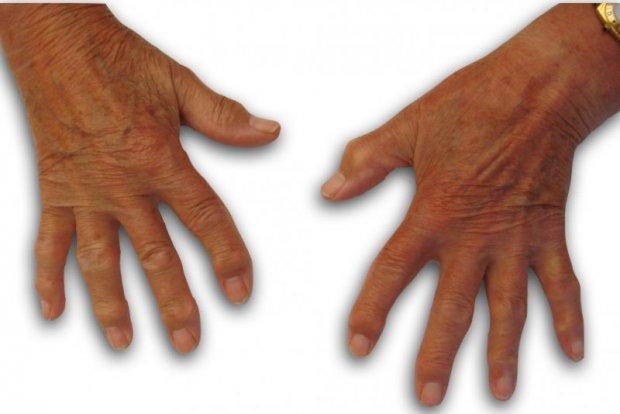 Arthrose polydigitale bilatérale : aspect clinique