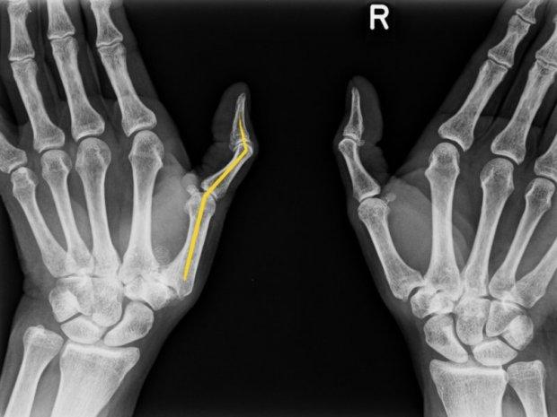 Déformation en Z du pouce : aspect radiologique