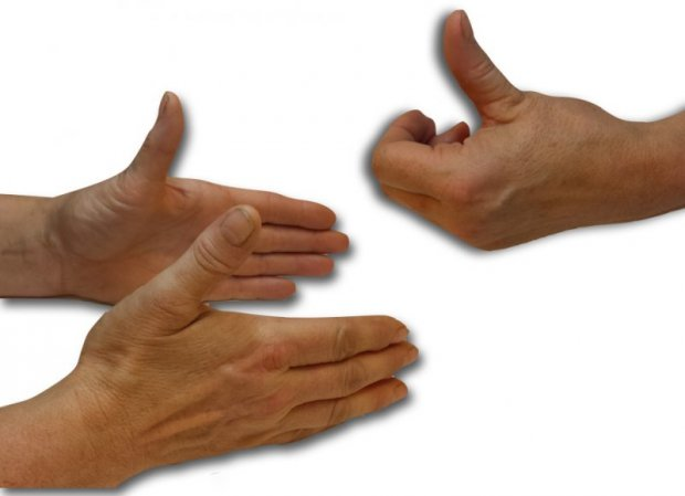 Z thumb deformation : clinical appearance