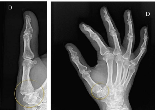 Rhizarthrosis or osteoarthritis of the thumb