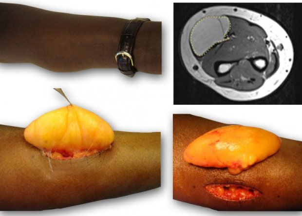 Tumeur de l'avant-bras de type Lipome