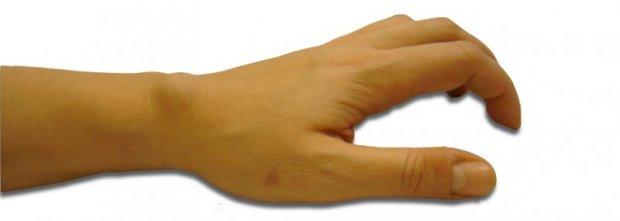 Aspect clinique d'un kyste ténosynovial dorsal du 2ème compartiment des extenseurs du carpe (ECRB-ECRL)