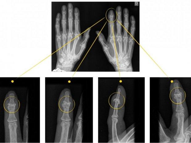 Arthrose de l'IPD : aspect radiologique